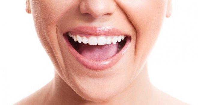 Ne morate kod zubara pet na ina da uklonite zubni kamenac kod ku e