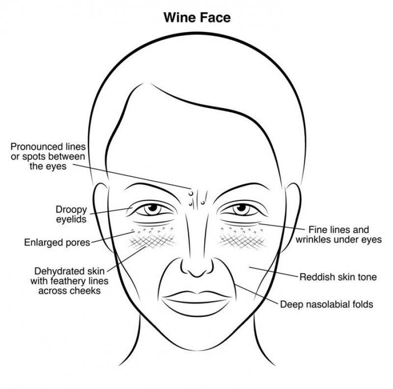 vinsko-lice