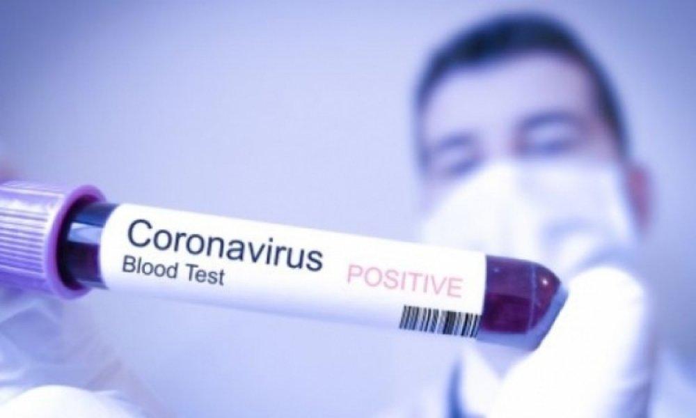 koronavirus-krv-testiranje